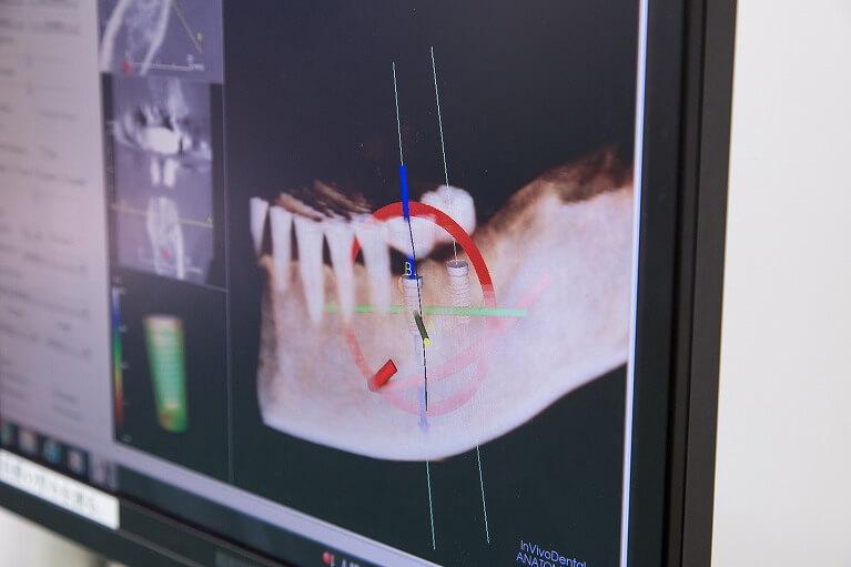 従来のレントゲンでは、判断できなかった神経の場所や深さ等、正確に計測できます。