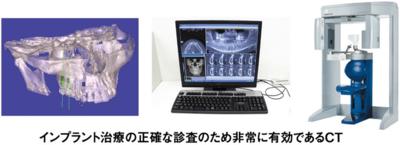 インプラント治療の正確な検査のため非常に有効であるCT