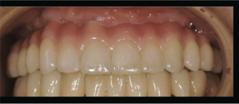 上の歯のインプラント治療12本の歯を5本のインプラントで支えています